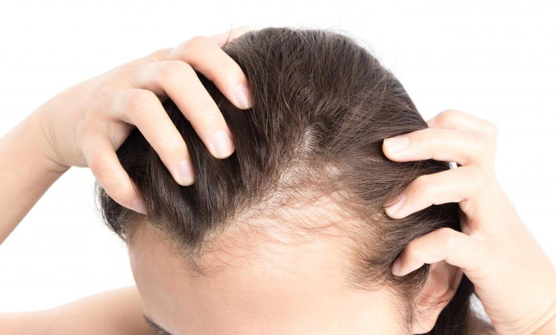 Femme Qui Perd Ses Cheveux