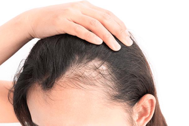 Femmes Perdition Cheveux