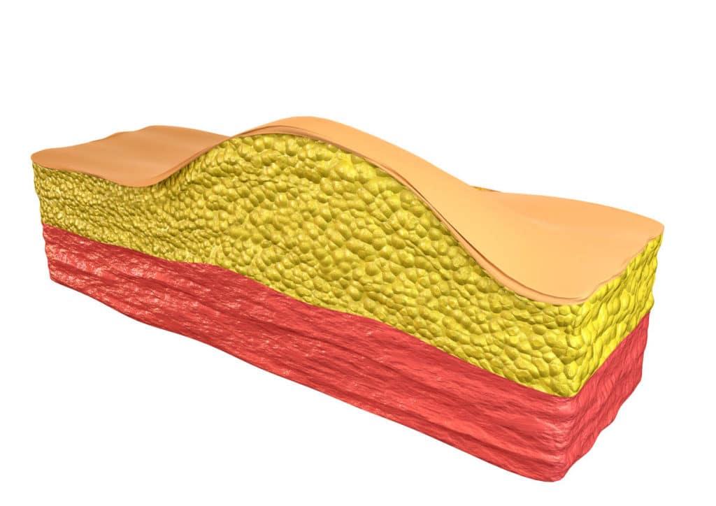 Lipome - une tumeur bénigne composée de cellules de tissu adipeux (adipocytes)