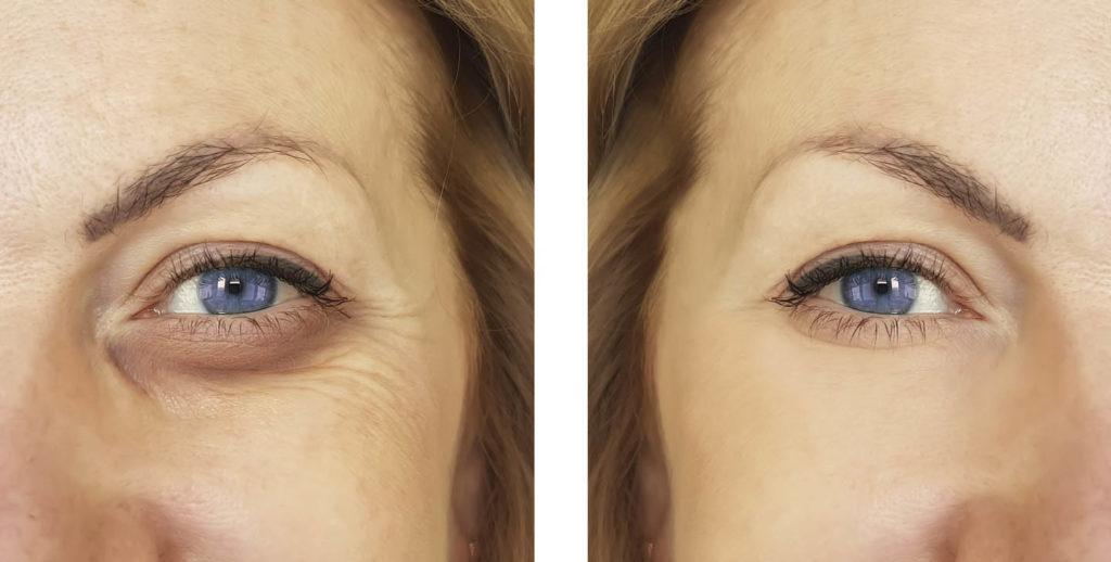 yeux femme avant et après opération poches sous les yeux