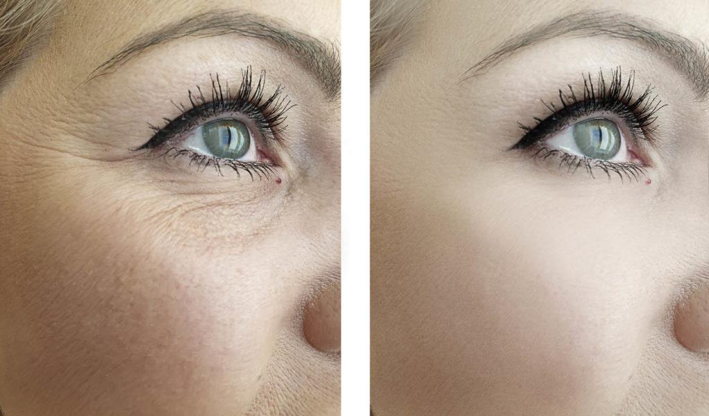 Rides d'oeil de femme avant et après opération