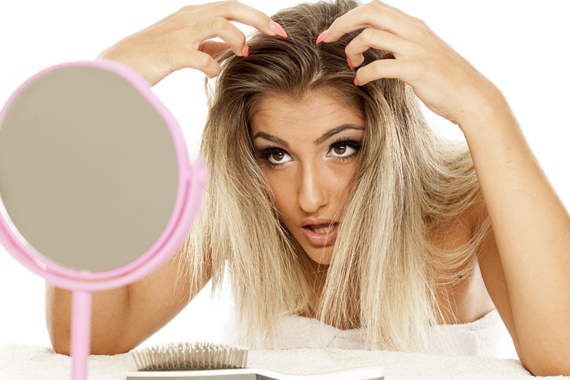 Perte Cheveux Femme