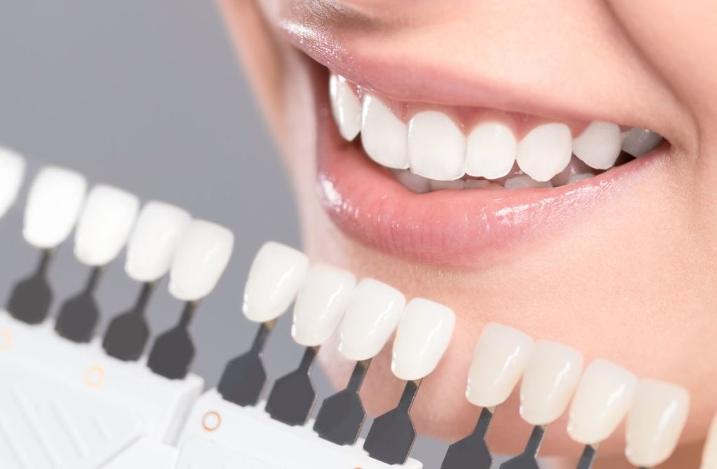 Blanchir Dents