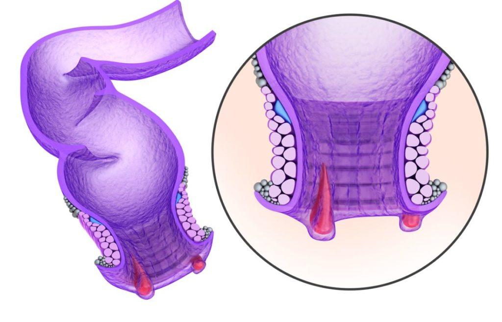 Fistule Anale Chirurgie