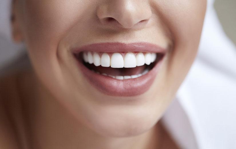 joli Sourire entretrien Dentiste