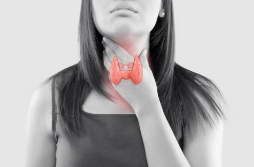 Hypothyroidie Thyroide Fatigue