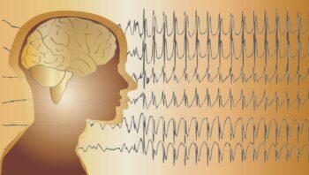 Epilepsie Cerveau