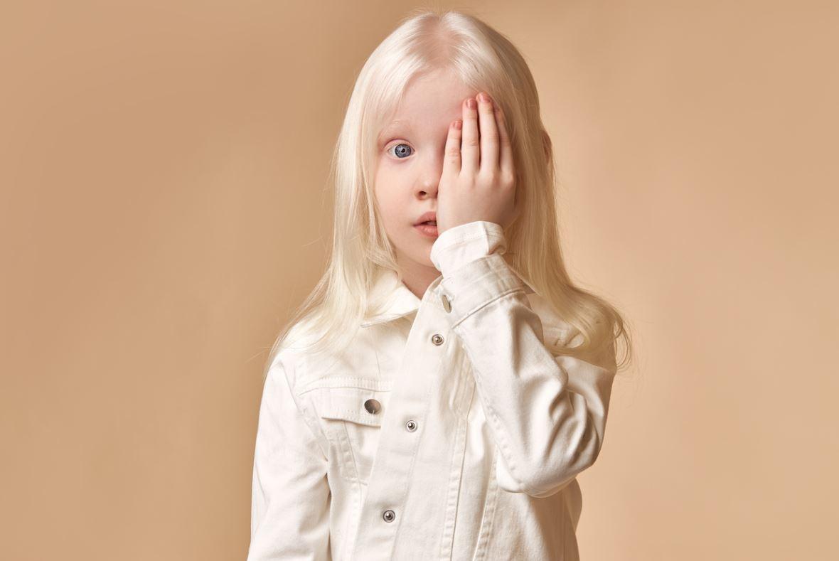 Albinisme Maladie Rare