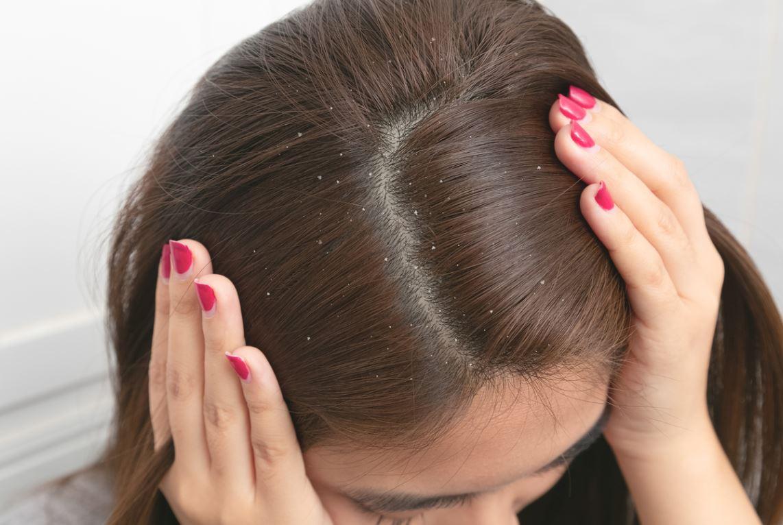 Pellicules Dans Les Cheveux