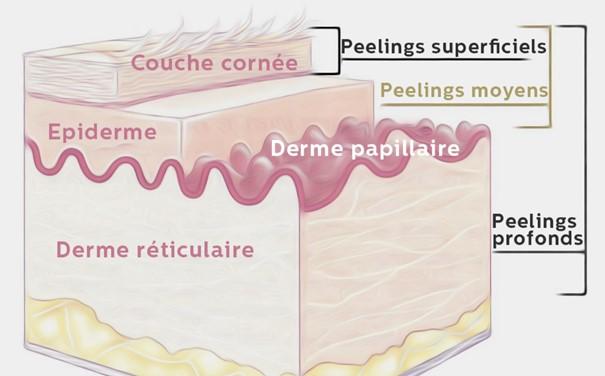 Zones Intervention Des Différents Peelings Schéma