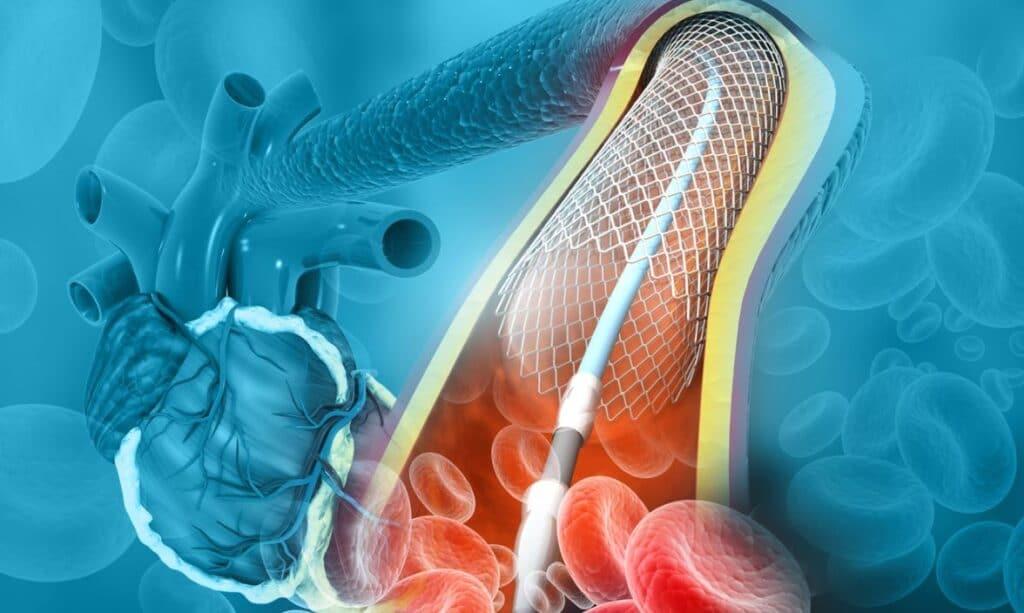 Angioplastie Infarctus