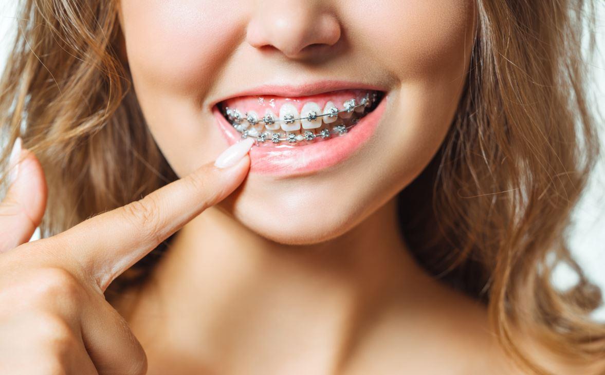 Orthodontie Appareil Dentaire
