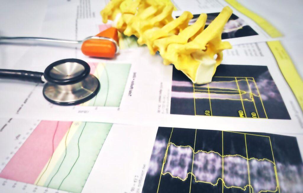 Osteoporose Maladie