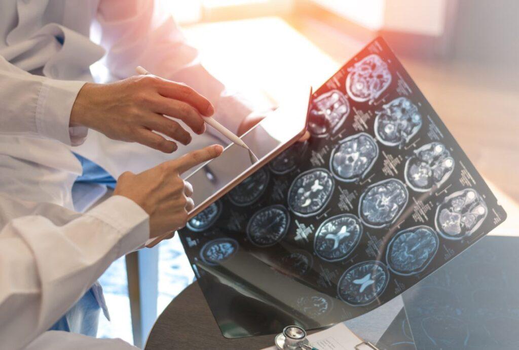 Sclerose En Plaques Maladie Cerveau